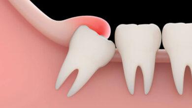 4153 390x220 - دندون عقل کی در میاد - سلامت دندان - سلامت