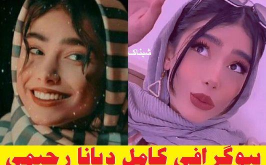 diana rahimi 1 532x330 - بیوگرافی دیانا رحیمی چهره معروف اینستاگرامی + عکسها